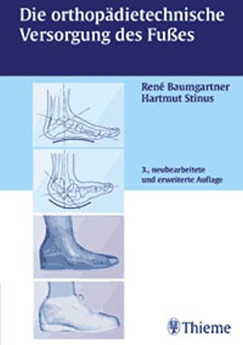 Die orthopädietechnische Versorgung des Fußes: . Zus.-Arb.: Herausgegeben von Rene Baumgartner und Hartmut Stinus bearbeitet von... (Autoren in alphabetischer Reihenfolge)