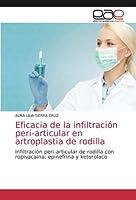 Eficacia de la infiltración peri-articular en artroplastia de rodilla: Infiltración peri-articular de rodilla con ropivacaina, epinefrina y ketorolaco