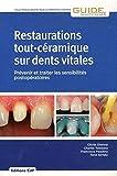 Restaurations tout-céramique sur dents vitales: Prévenir et traiter les sensibilités postopératoires