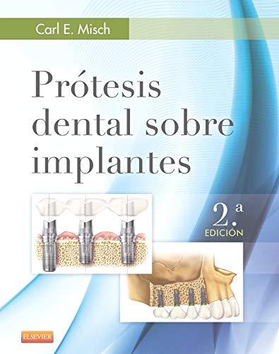 Prótesis dental sobre implantes - 2º Edición