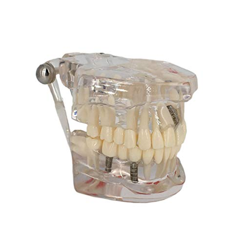 GEEFSU-Reparatur Zahnmodell,Zahnarzt Dental Implant Oral Pathologische Modell - Abnehmbarer Tooth,Clear