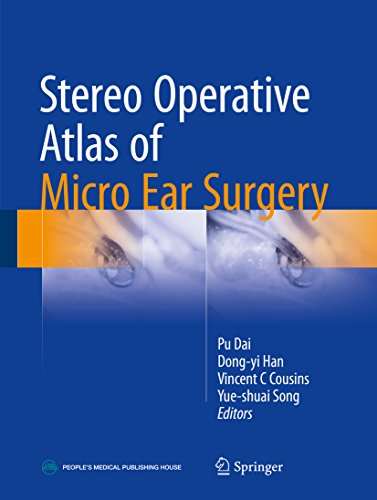 Stereo Operative Atlas of Micro Ear Surgery (English Edition)