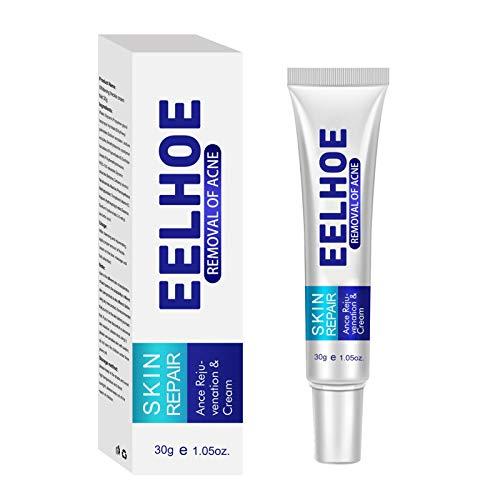 Crema para el acné, Tratamiento para las manchas, Crema antimanchas, Hidratante para la piel y la cara para eliminar el acné, adecuada y segura para las personas propensas al acné, 30 g