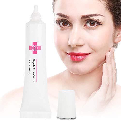 Anti-Akne-Creme – Behandlung von Akne, Anti-Dekubitus, Creme für das natürliche Gesicht, super natürliche Akne, hilft bei der Beseitigung von Akne