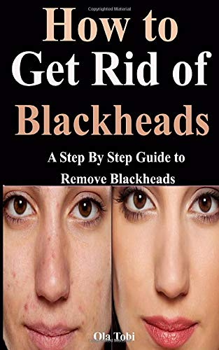How to Get Rid of Blackheads: A Step By Step Guide to Remove Blackheads