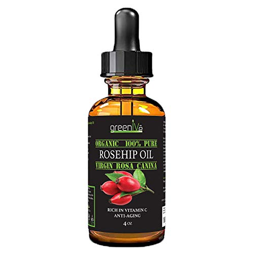 GreenIVe - Rosehip Oil - Rosa Canina - 100% Pure - Cold Pressed - Virgin - Exclusively on Amazon (4 Ounce)