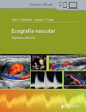 Ecografía Vascular + ebook