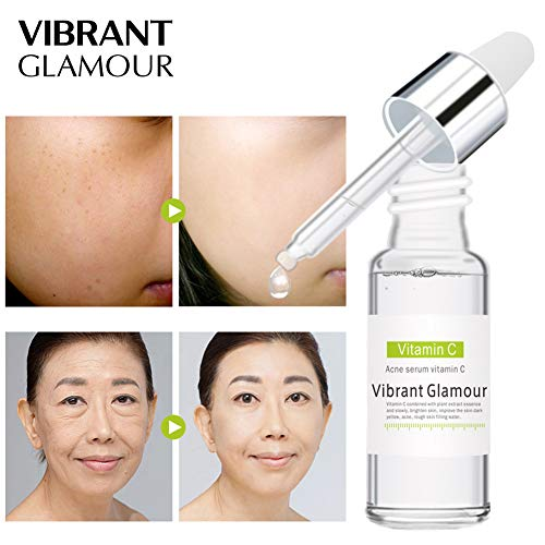 Absir VIBRANT GLAMOUR Vitamin C Serum Hyaluronic Acid Acne Treatment Fade Dark Spots Anti-Aging Whitening Face Cream