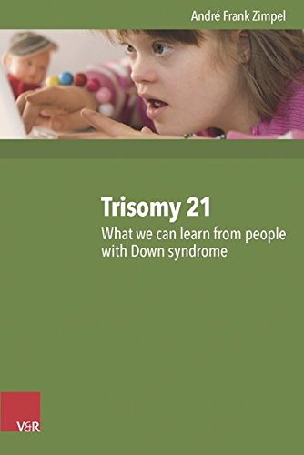 Trisomy 21: What we can learn from people with Down syndrome