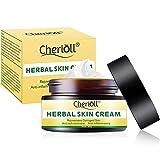 Crema para el cuerpo, tratamiento para la psoriasis, eccema, rosácea y dermatitis, la crema herbal china natural reduce la sequedad y la inflamación, el tratamiento para la piel con picazón