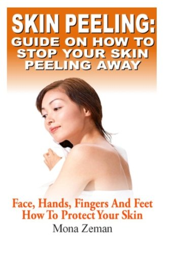 Skin Peeling : Guide On How To Stop Your Skin Peeling Away: Face, Hands, Fingers And Feet How To Protect Your Skin