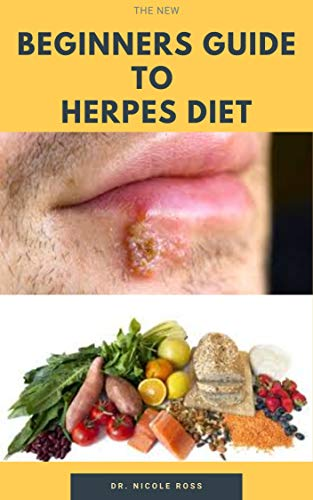 THE NEW BEGINNERS GUIDE TO HERPES DIET:  Easy and complete guide on how to quickly get rid and destroy the herpes virus in your body system. (English Edition)