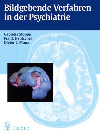 Bildgebende Verfahren in der Psychiatrie