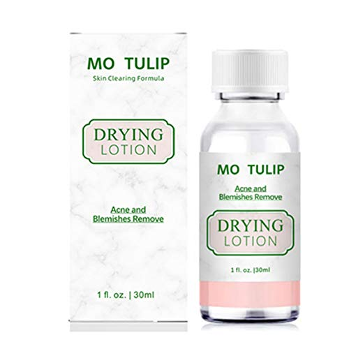 MO TULIP Acne Drying Lotion, Overnight Acne Acid and Acne Spot Treatment for Face and Body, Pimple Lotion Spot Treatment, Dry Out Pimples, Blemishes, and Clean pores (1 O.Z)