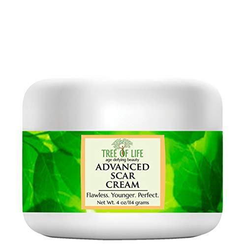 Cicatrices et vergetures Crème hydratante pour la peau