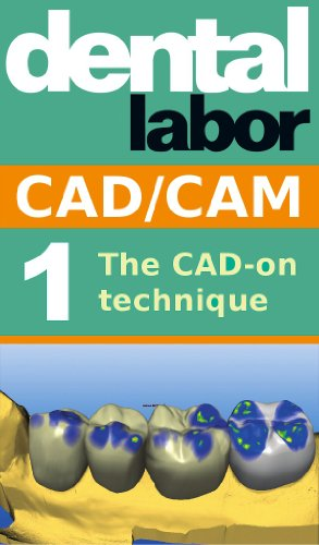 The CAD-on technique (dental lab technology articles Book 5) (English Edition)