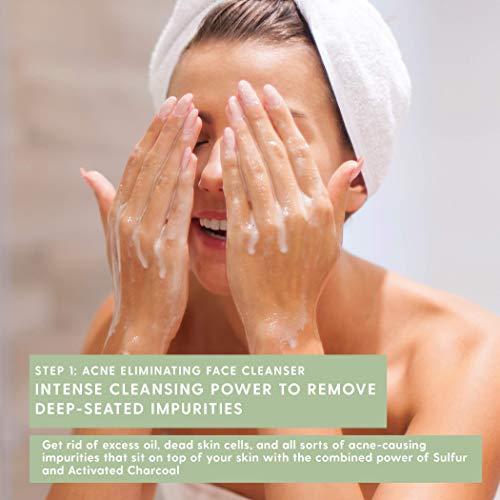TreeActiv 4-Step Cystic Acne Treatment Kit – Sulfur Face Wash, Witch Hazel Toner, Tea Tree Oil Pimple Spot Remover,