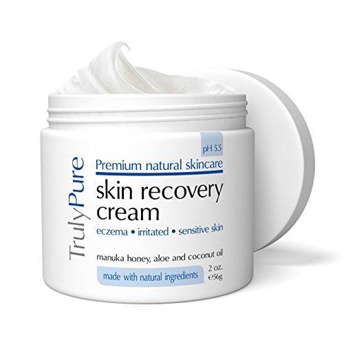 Psoriasis & Eczema Cream 2oz Organic Advanced Healing Moisturizer with Shea Butter, Coconut Oil, Aloe Vera & Manuka Honey. Best Natural Moisturizer for Dermatitis, Rosacea, Shingles, Dry, Itchy Skin