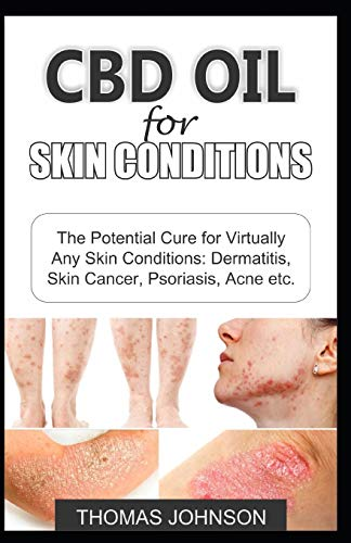 CBD OIL FOR SKIN CONDITIONS: The Potential Cure for Virtually Any Skin Conditions: Dermatitis, Skin Cancer, Psoriasis, Acne etc.