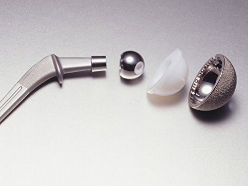 Materials for Body Implants