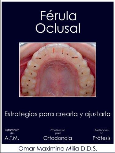 FÉRULA OCLUSAL: ESTRATEGIAS PARA CREARLA Y AJUSTARLA