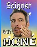 Soigner son acné: -Maîtrisez les symptômes de votre acné au quotidien grâce à ce carnet spécialement conçu / Traitement, Diététique, Habitudes, ... douleur.../ 8X10 (20,32X25,40 cm) / 101 pages