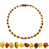 Best Amber Teething Necklaces - Temgee Baltic Amber Necklace Gift Set - Raw Review