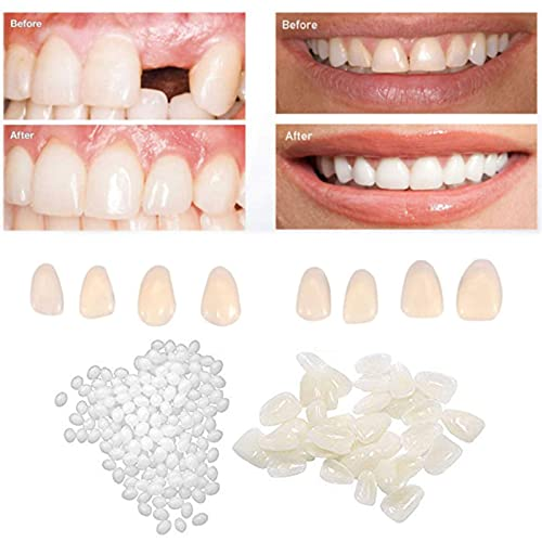 CZsy Temporary Tooth Repair Kit,50g Filling Tooth Beads and 60pcs for Fix The Missing Tooth Veneers,for Fix Filling The Missing Broken Tooth and Gaps,Artfifical Teeth