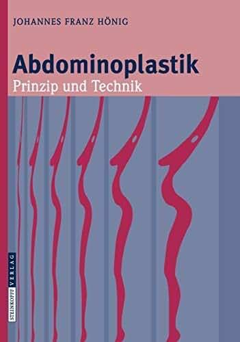 Abdominoplastik: Prinzip und Technik (German Edition)