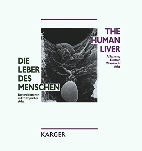 Die Leber des Menschen / The Human Liver: Rasterelektronenmikroskopischer Atlas / A Scanning Electron Microscopic Atlas (German Edition)