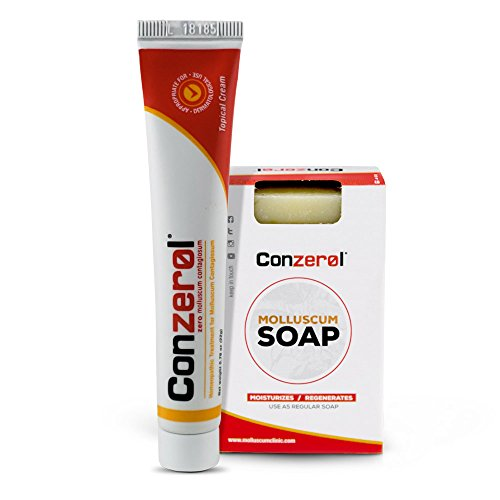 Stop Molluscum Today. Conzerol 2 Step Treatment for Molluscum Contagiosum. Painfree and Natural …