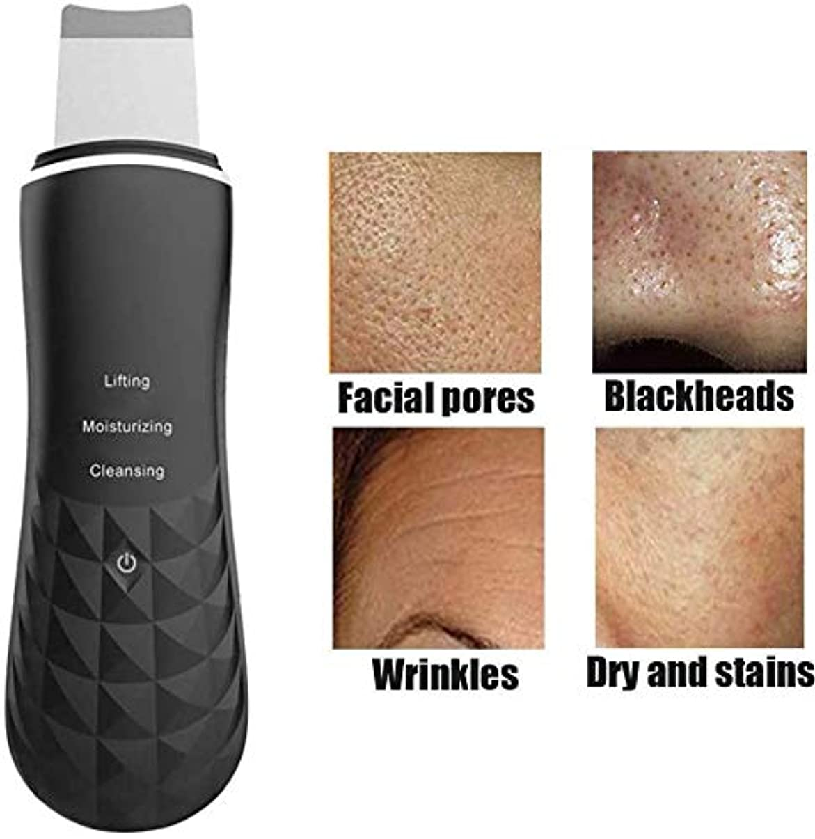 労働読み書きのできないにきび除去皮膚剥離顔面加熱皮膚洗浄器、EMS加熱イオン高周波振動フェイススパチュラビューティーデバイス,黒