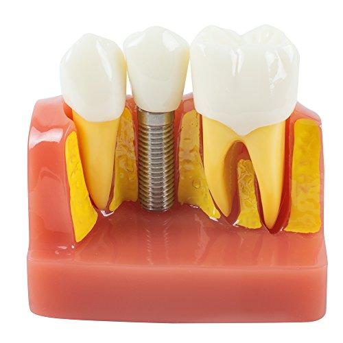 Enshey Dental Implantación Análisis Puente Corona Dental Demonstración Dental Dientes Modelo Typodont Implantación Análisis Puente Corona 2018
