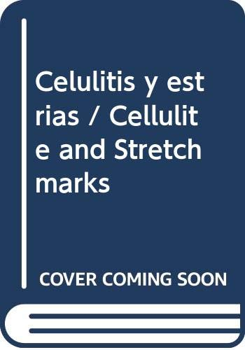 Celulitis y estrias / Cellulite and Stretch marks