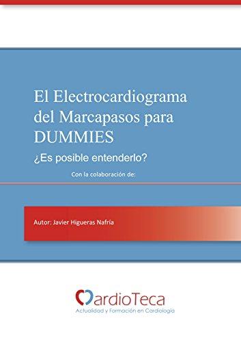 El Electrocardiograma del Marcapasos para Dummies. ¿Es