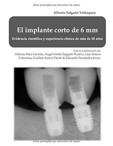 El implante corto de 6 mm: Evidencia científica y experienc
