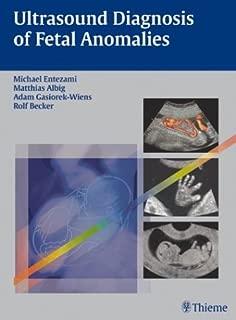 Ultrasound Diagnosis of Fetal Anomalies