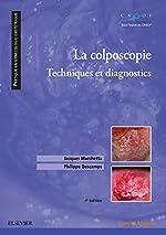 La colposcopie - Techniques et diagnostics de Jacques Marchetta