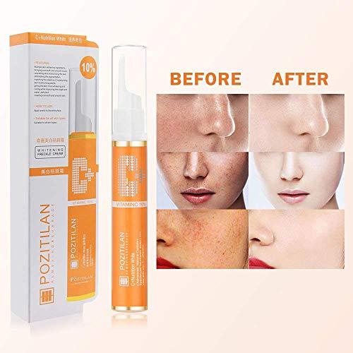 Freckle Remover Cream,VC Dark Spot Removal Skin Tag Removal,Mole Remover Pen Melasma Remover for Removing Skin Tags Freckles Dark Spot, Removes Hyperpigmenta Spot Treatments