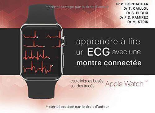 Apprendre à lire un ECG avec une montre connectée: cas cliniques basés sur des tracés Apple Watch (édition noir et blanc)