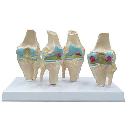 XIEJI Kniegelenk Modell Anatomie Mensch Läsion Knie Pathologie Pathologisch Krank 1: 1 Lebensgröße Bildung Medizinisches Anatomisches Modell