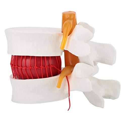 1: 1,5 modelo de demostración médica de hernia de disco lumbar humano de plástico modelo de columna vertebral lumbar modelo de disco lumbar humano para enseñanza linical