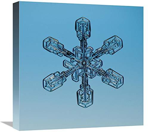 Global Gallery Kunstdruck auf Leinwand, Motiv Schneeflocke durch Mikroskope, 45,7 x 45,7 cm