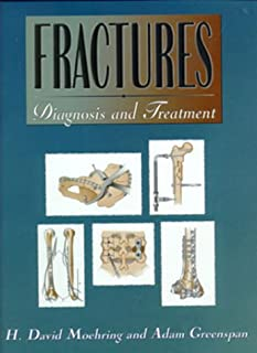 Fractures: Diagnosis and Treatment