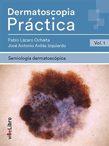 Dermatoscopia Práctica. Vol. 1: Semiología Dermatoscópica  (Spanish Edition)