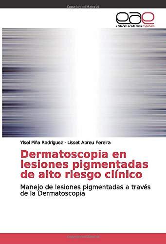 Dermatoscopia en lesiones pigmentadas de alto riesgo clínico: Manejo de lesiones pigmentadas a través de la Dermatoscopia
