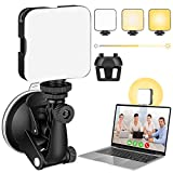 USKEYVISION Video Zoom Light Kit with Suction Cup & Built-in Battery, Video Conference Lighting for Online Meeting & Class, Compatibile with Computers,Tablets, Laptop, Pad & Smartphones (UVZL-1)