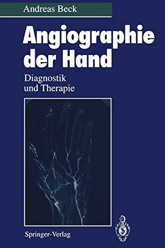 Angiographie der Hand: Diagnostik und Therapie
