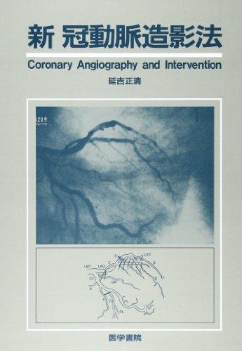 新冠動脈造影法の詳細を見る
