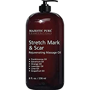 Stretch Mark and Scar Rejuvenating Massage Oil By Majestic Pure, for Softer & Smoother Skin – Visibly Reduces Appearances of Scars and Stretch Marks – 8 fl oz